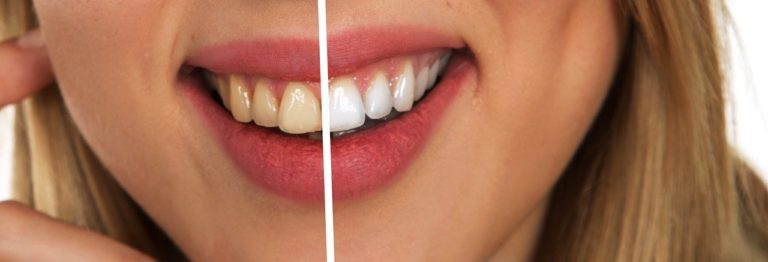 tooth, dental care, white